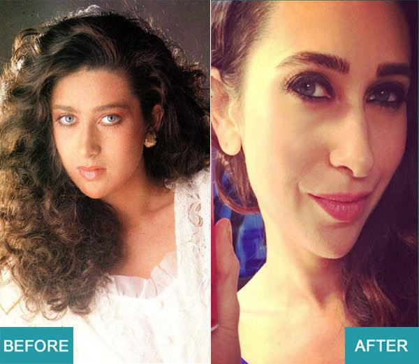 Surgery Actresses of bollywood (1)