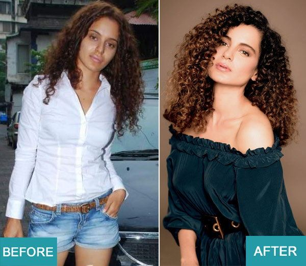 Surgery Actresses of bollywood (10)