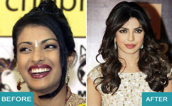 Surgery Actresses of bollywood (2)