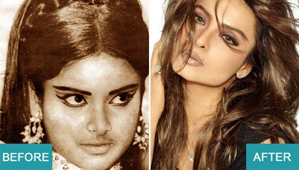 Surgery Actresses of bollywood (3)