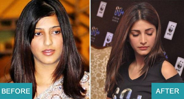 Surgery Actresses of bollywood (4)