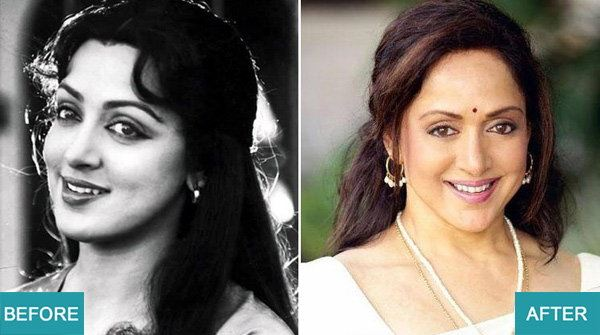 Surgery Actresses of bollywood (5)