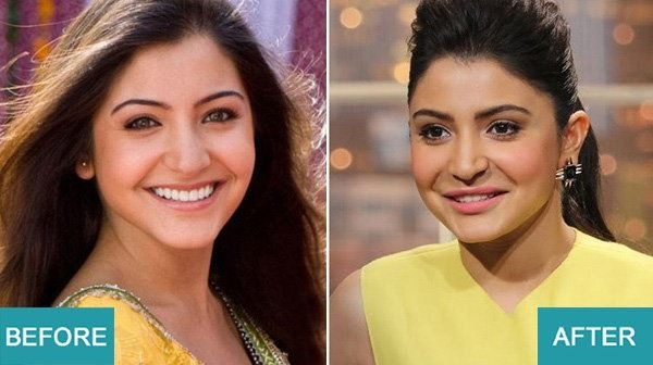 Surgery Actresses of bollywood (6)