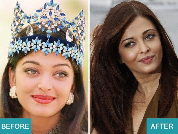 Surgery Actresses of bollywood (8)