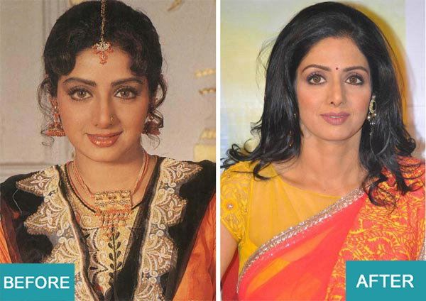 Surgery Actresses of bollywood (9)