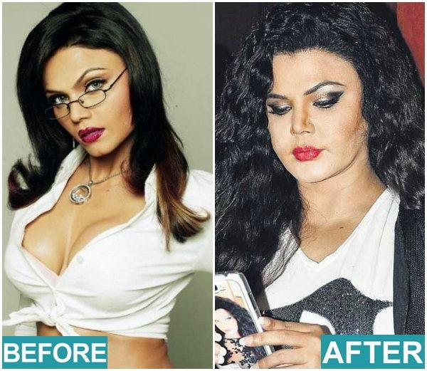 bollywood actress surgery 411747