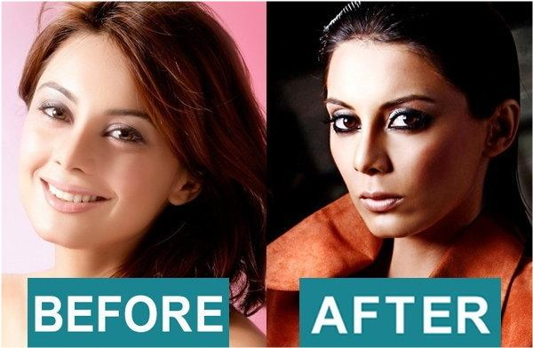 bollywood actress surgery 942497